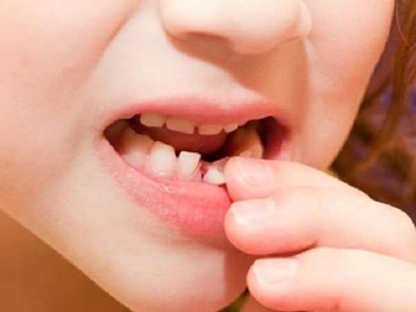 Chiêm bao thấy nhổ răng đánh đề con gì?