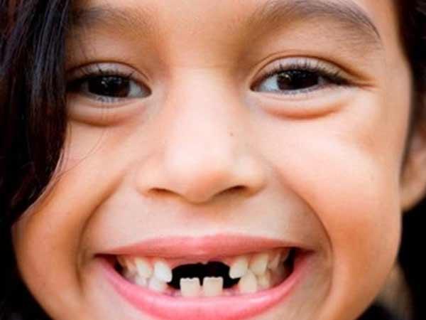Mơ thấy gãy răng nên đánh số đề con bao nhiêu
