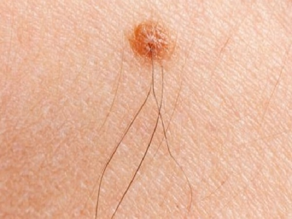 Xem tướng nốt ruồi có lông là tốt hay xấu?