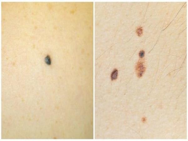 Nốt ruồi xanh có ý nghĩa gì? tốt hay xấu?